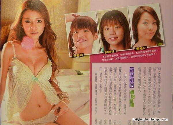 Tia Li Yufen (李毓芬) plastic surgery