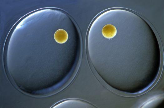 Snail eggs (200x)