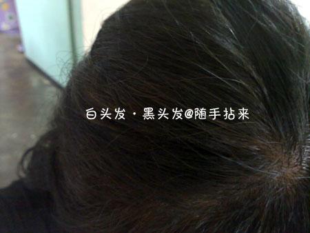 白头发·黑头发