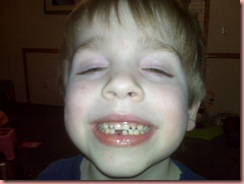 josh missing tooth