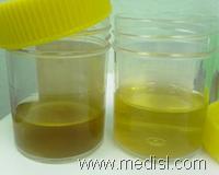 Nephrology MCQ 8-10 :