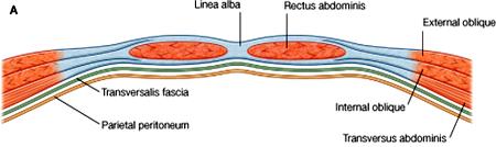 above semicircular line of Douglas (midway between symphysis pubis and umbilicus):