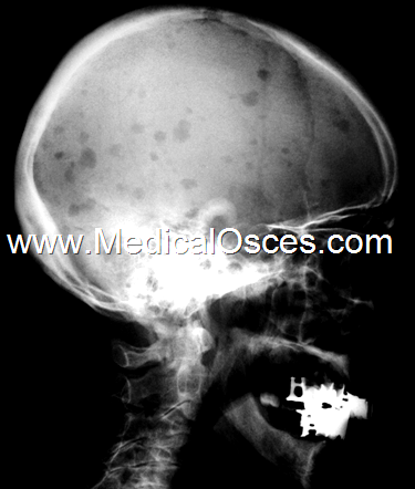This skull X-ray is of a 78 year old man who complained of backache and lethargy..