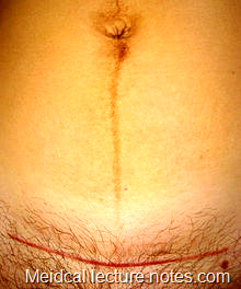 Pfannenstiel  scars  (used  for  Caesarean  section, hysterectomy,  etc.).