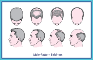 hair_loss_men_11