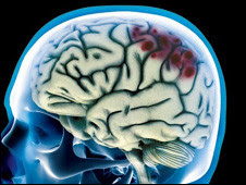 Imagem de exame de dano cerebral