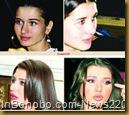 elena_basescu_cosmeticSurgery