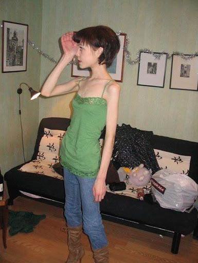 A Triste e Falsa Beleza da Anorexia