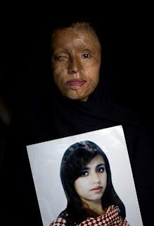 Terrorismo ácido contra mulheres do paquistao