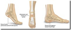 footproblems3