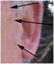 Spot Healing Example