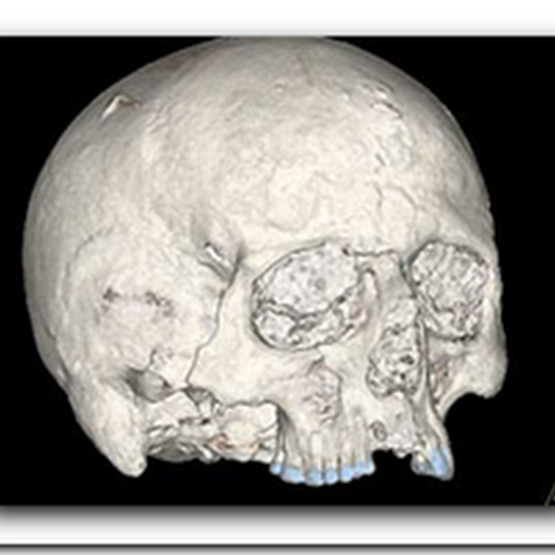 Scientists Find Oldest Human Brain in Britain - Preserved
