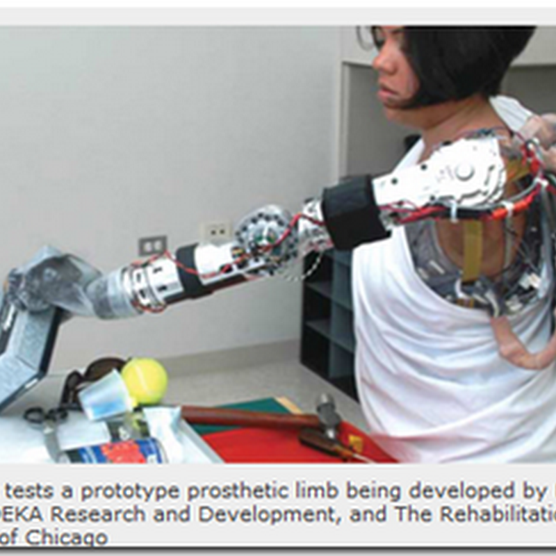 The Prosthetic Arm In Action