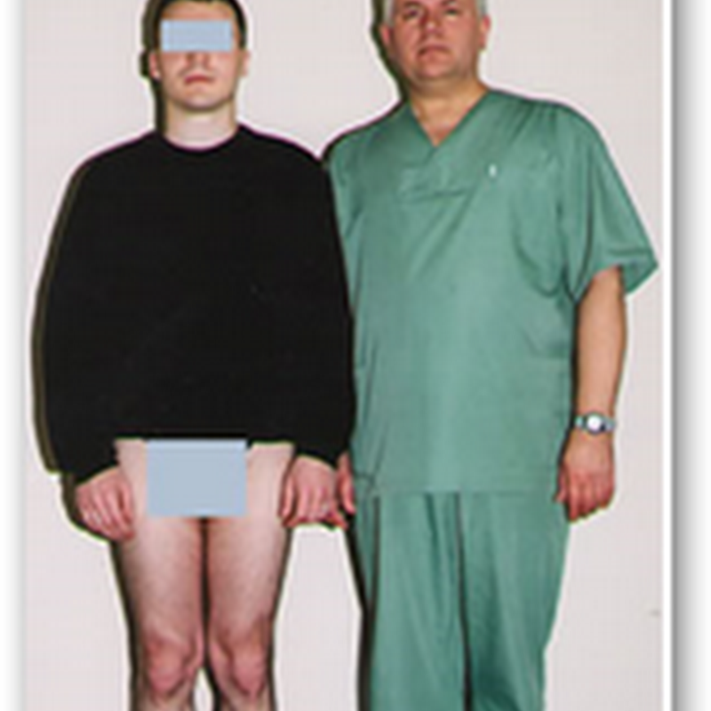 Surgery to Become Taller – Cosmetic Limb Lengthening (CLL)