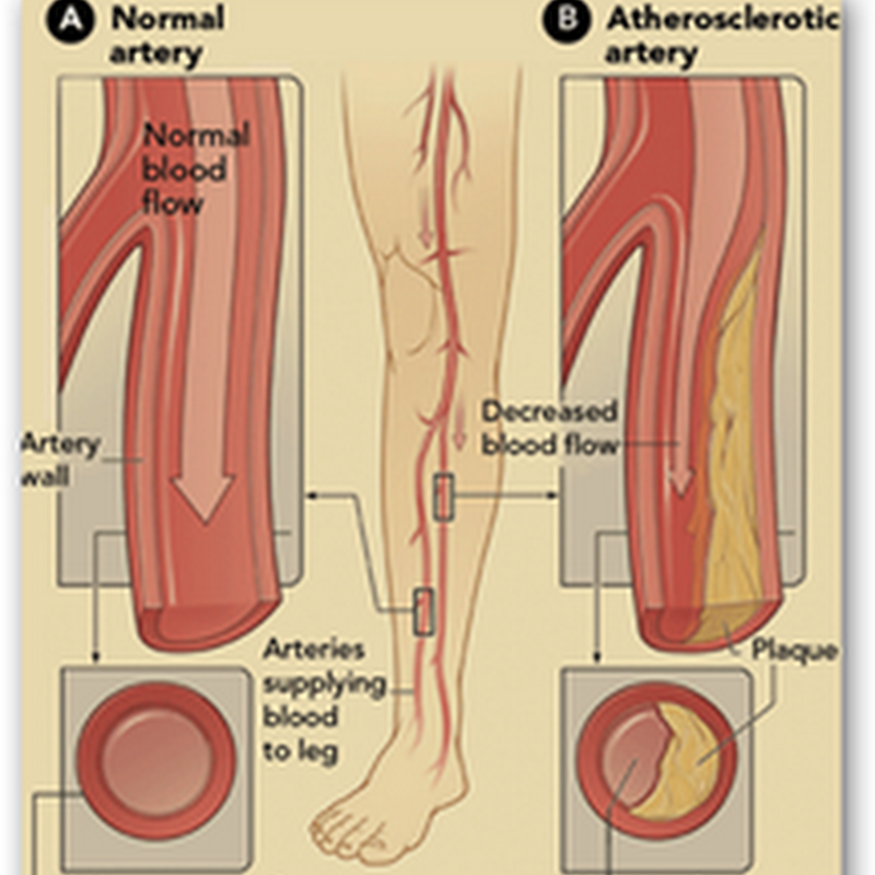 Stem Cells Used to Treat Peripheral Arterial Disease–Clogged Arteries in the Legs (PAD)