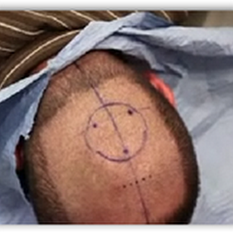 Man Has Camera Implanted in His Head to Capture Images As Seen From the Back of His Head
