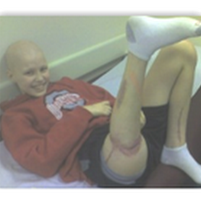 Doctors Reattach Leg Backwards On Purpose-Reconstructive Surgery for Cancer