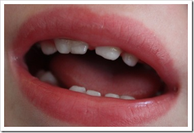 gemination - front tooth split into two teeth