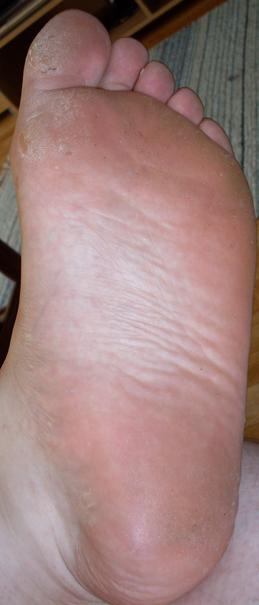 psoriasis fötter bilder