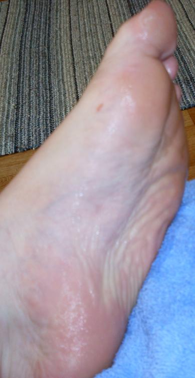 psoriasis under foten