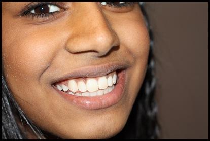 braces 0014_resize