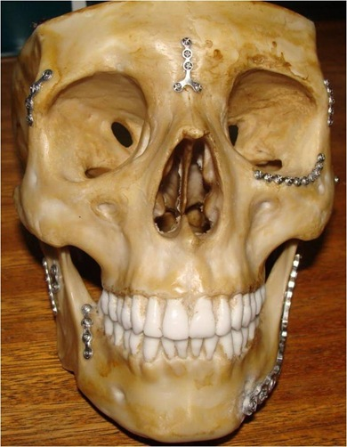 cranionac6