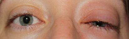 eye 017