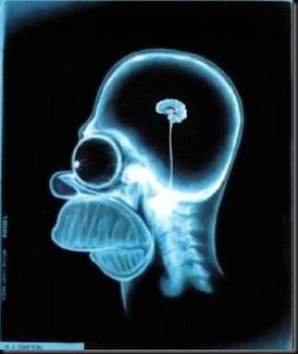 cerebro anoretico