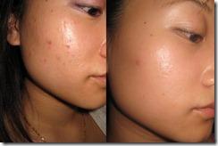 acnesas