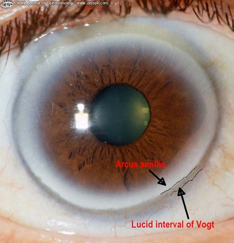lucid interval of vogt