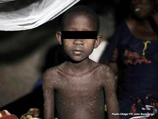 – Un enfant sous traitement pour la rougeole dans l'hôpital de Baraka, appuyé par MSF, dans le sud-Kivu. Photo MSF 2010