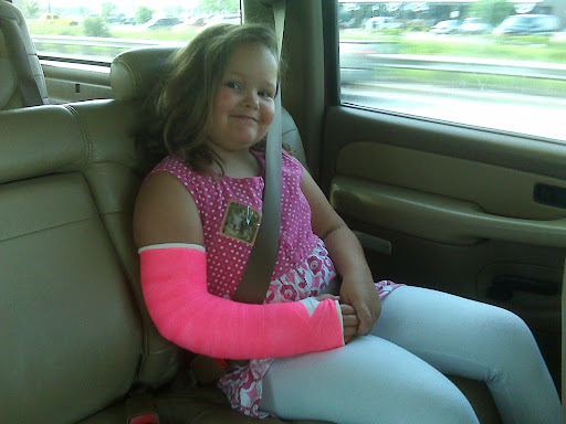 Bab's breaks her arm.