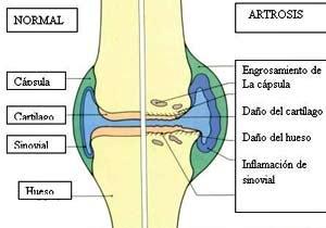 ArtrosisVSD