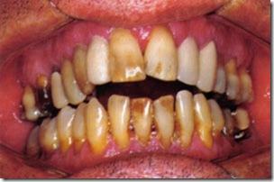 medicina-periodontal