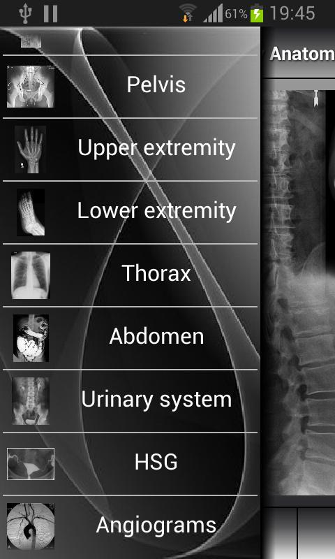 Human X-ray Anatomy Screenshot 1