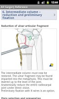 Screenshot of AO Surgery Reference
