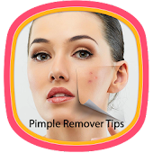 Pimple Remover Tips APK for Lenovo