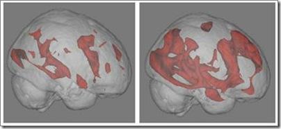 brain15102008