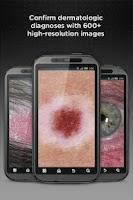 Screenshot of Dermatology DDx