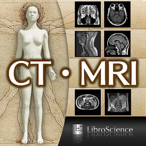 Download Interactive CT and MRI Anatomy APK