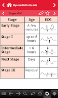 Screenshot of ECG pocketcards