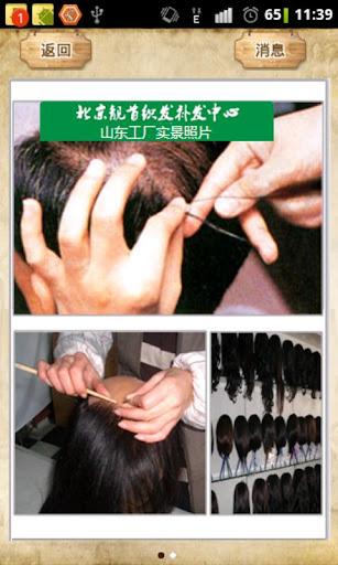 假发定做-北京靓首织发补发中心