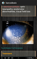 Screenshot of Ophthalmology