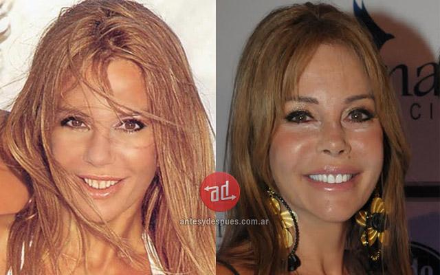 Foto del aumento de labios de Graciela Alfano