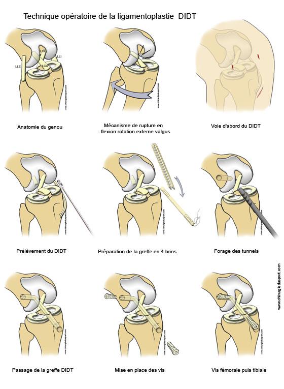 fiche_technique_ligamentoplastie_didt_lca_chirurgiedusport_ligament_genou_kj_entorse_docteur_lefevre.jpg