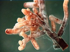 Mycorrhizal_Root_Tips