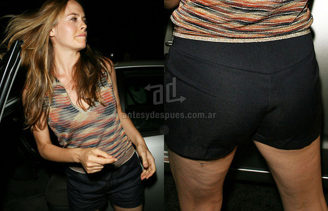 Cellulite of Alicia Silverstone