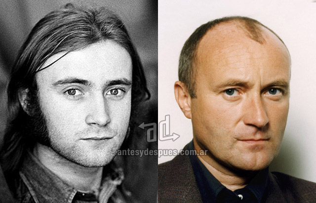 La caida del pelo de Phill Collins