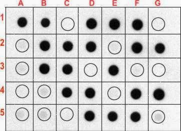 Dot Blot Hybridization Technique: Definition, Principle, Procedure and Applications