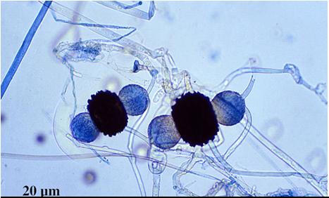 Rhizopus Zygospores Classification of Fung...